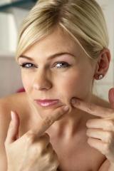 quitar-el-acne1