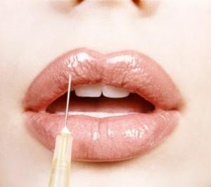 Aumento de labios con botox
