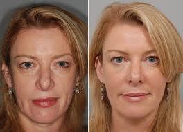 acido hialurónico, mejor tratamiento para eliminar las arrugas