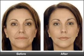 acido hialuronico para las arrugas