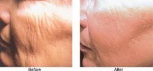tratamiento para eliminar las arrugas
